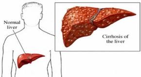 obat tumor hati tradisional