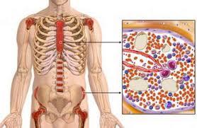Obat Leukemia Tradisional