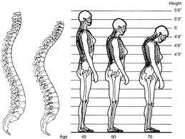 Obat Osteoporosis Tradisional