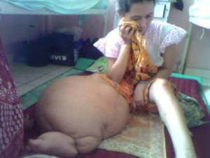 obat kaki gajah tradisional