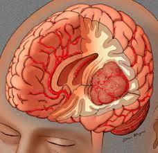 obat tumor otak tradisional
