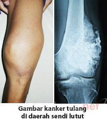 obat kanker tulang tradisional